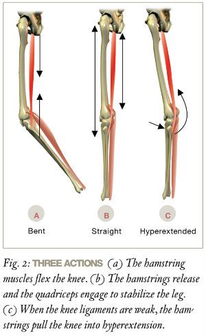 sore hamstrings